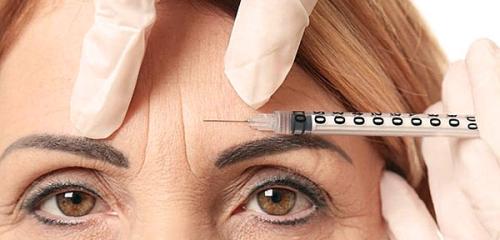 Suntikan Botox di dalam kening: nuansa penting