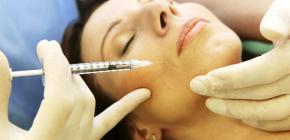 Injections de Botox dans les sillons nasogéniens