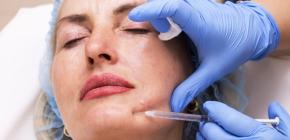 Spécificités des injections de Botox dans le menton et les muscles masticateurs