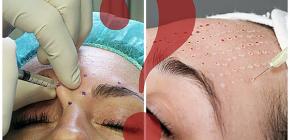 Botox ou bio-revitalisation: quelle différence?