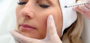 L'utilisation de Botox dans le contour des yeux