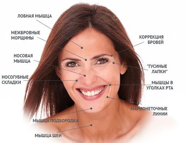 Zones de correction du Botox