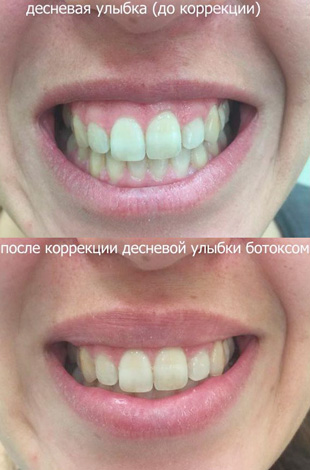 Gomme sourire correction