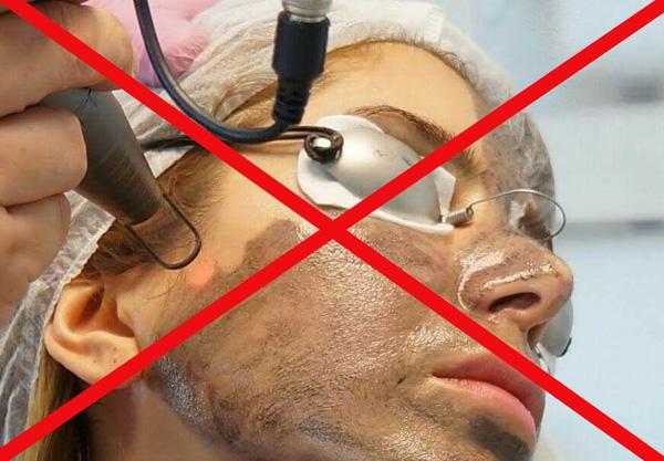 Interdiction après une thérapie botulique