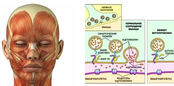 L'effet de la toxine botulique sur les muscles