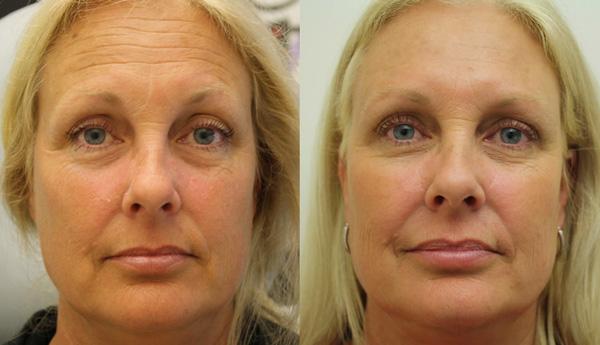 Botox avant et après