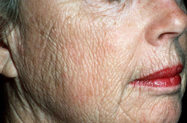 Amincissement de la peau lié à l'âge