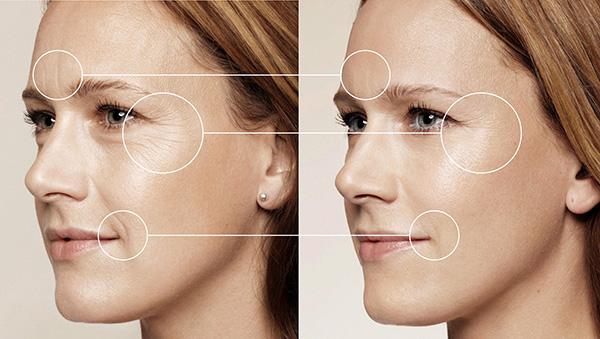 Correction des rides du visage