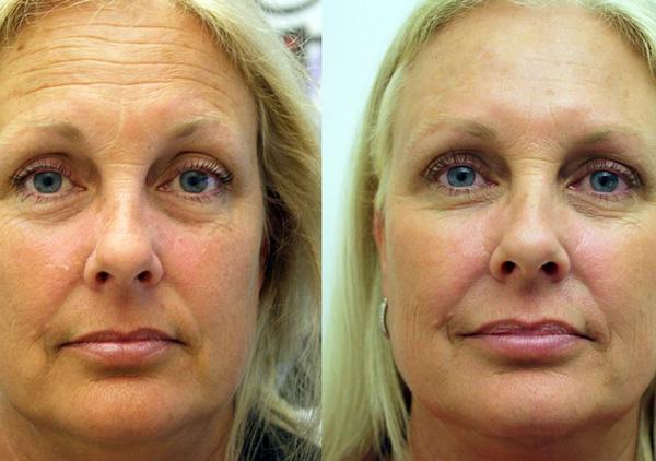Photographie du patient avant et après Botulax