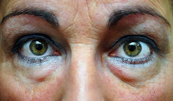 Botox pour la hernie oculaire