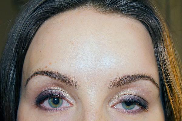 Prolapsus des paupières supérieures après Botox