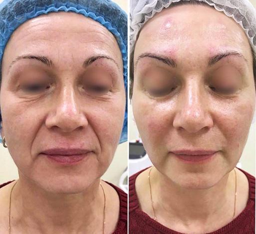 Élimination complexe des rides du visage