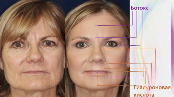 L'utilisation de Botox et d'acide hyaluronique dans le complexe