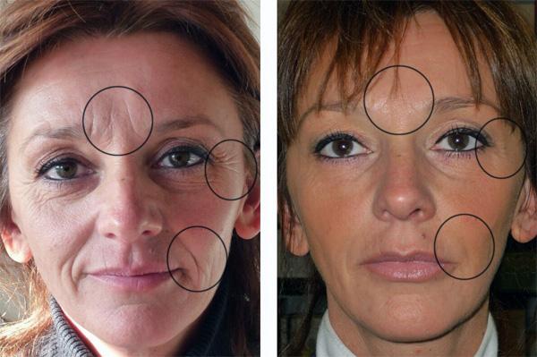 Effet Botox sur le visage