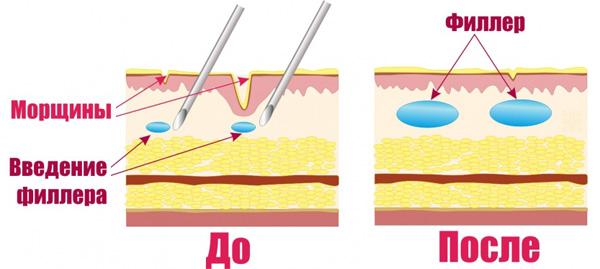 Le mécanisme d'action des charges avec l'acide hyaluronique
