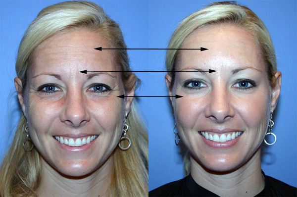 Les zones du visage où la toxine botulique est le plus couramment utilisé