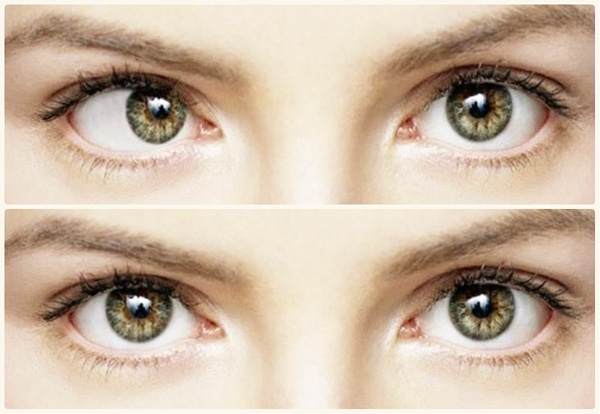 Correction du strabisme au Botox avant et après