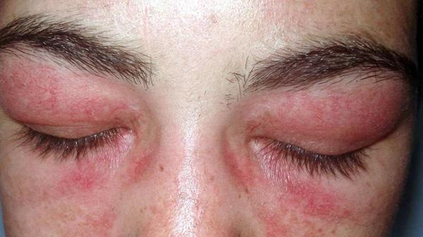 Gonflement des paupières après l'utilisation de Botox contrefait