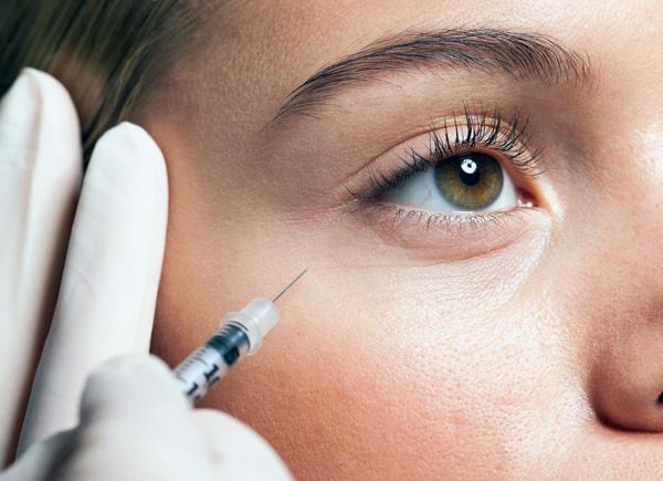Nous allons déterminer quelles rides de la région des yeux peuvent être éliminées avec Botox ...