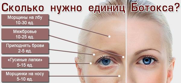Le nombre d'unités de Botox permettant d'éliminer diverses rides