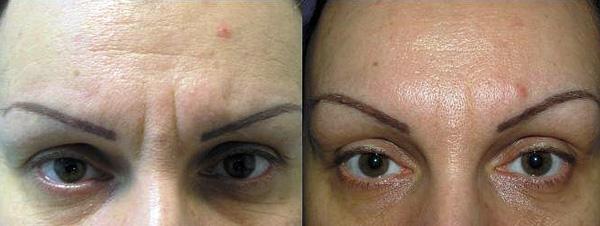 Botox réparation des rides