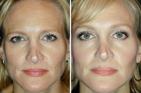 Avec Botox, vous pouvez lever la paupière et rendre vos yeux plus ouverts.