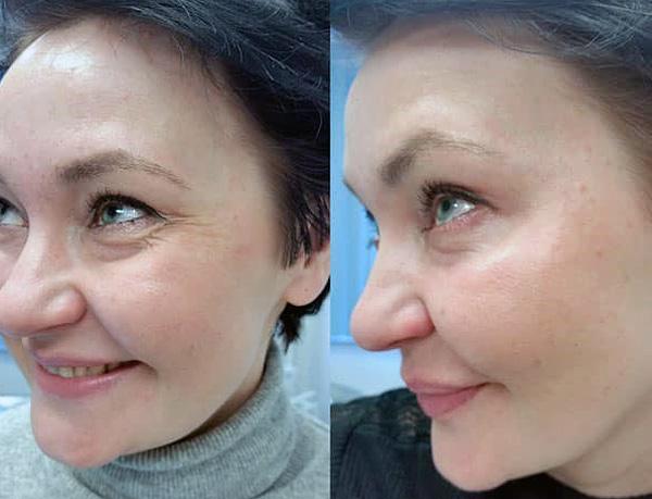 Correction des rides du visage dans les coins des yeux avec Botox (avant et après)