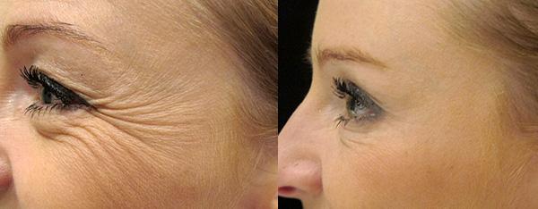 Élimination des rides dans le coin des yeux et dans la partie supérieure des joues (avant et après l'introduction du Botox)