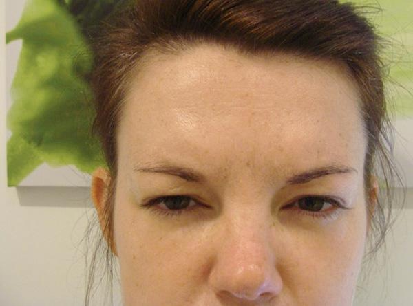 L'effet d'un visage diabolique après l'application de Botox