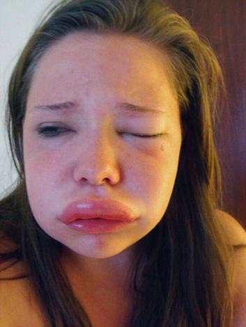 Œdème de Quincke après injection, procédures cosmétiques