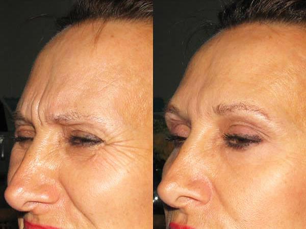 La formation du rouleau superciliaire à la suite des injections de Botox