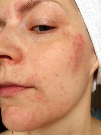 Une réaction allergique au Botox
