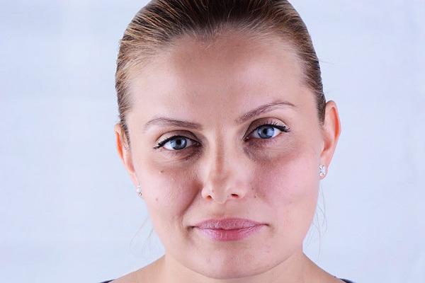 Asymétrie du visage à la suite d'un traitement botulinique
