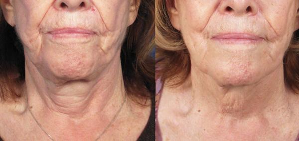 Augmentation de l'élasticité de la peau avec des préparations de toxine botulique