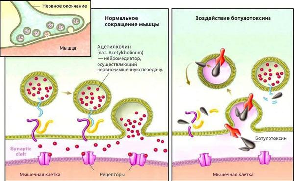 Action musculaire de la toxine botulique