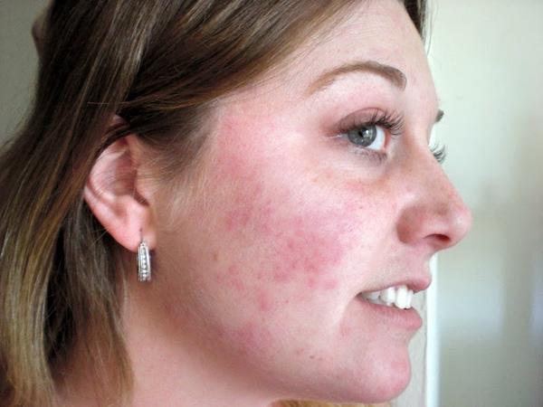 Réaction allergique au lactose, qui fait partie de Dysport