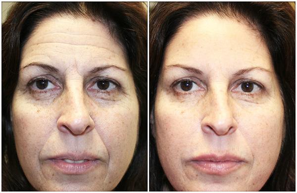 L'utilisation de Botox: avant et après