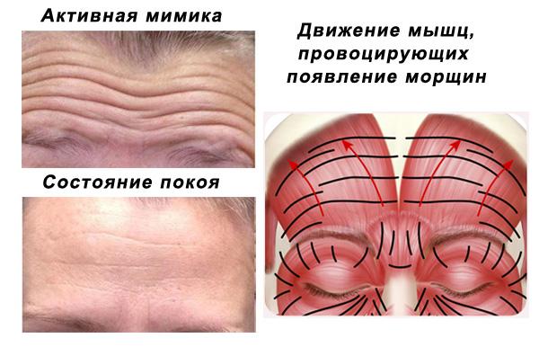 Les muscles qui déclenchent les rides horizontales du front
