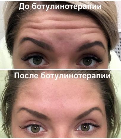 Botox contre les rides du front (avant et après les photos)