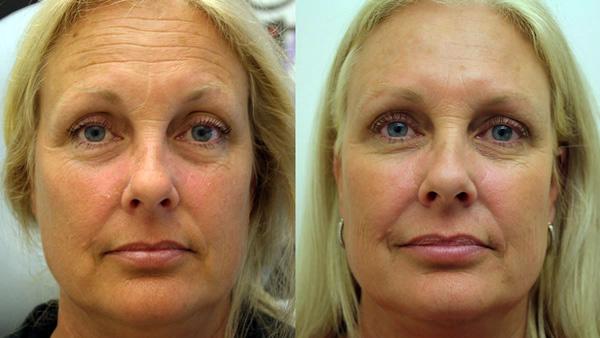 Se débarrasser des rides du visage avec Botox