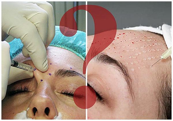 Nous découvrons quelle est la différence entre le Botox et la bio-revitalisation et quelle procédure est préférable de privilégier une situation donnée ...