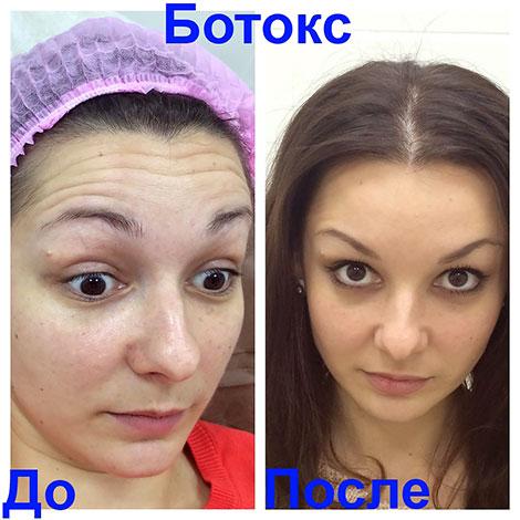 Élimination des rides dynamiques du front avec Botox (avant et après la procédure)