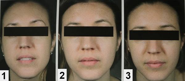 Botox Correction du contour du visage