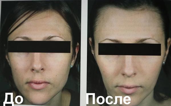 Allongement et rétrécissement excessifs du visage après le Botox