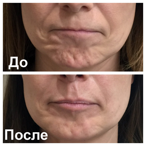 Botox anti-rides sur le menton