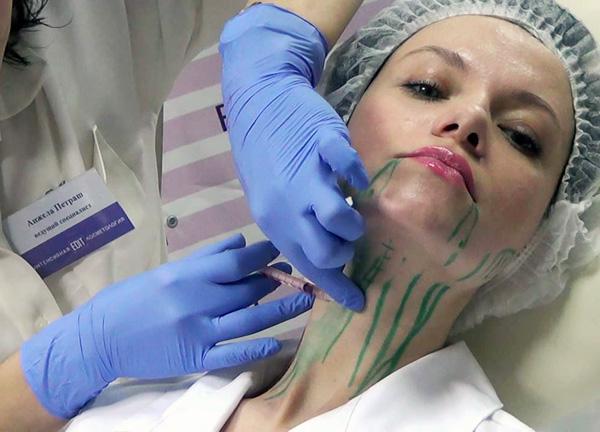 Lors de la correction des contours du visage avec Botox, la précision de l'administration du médicament est importante.