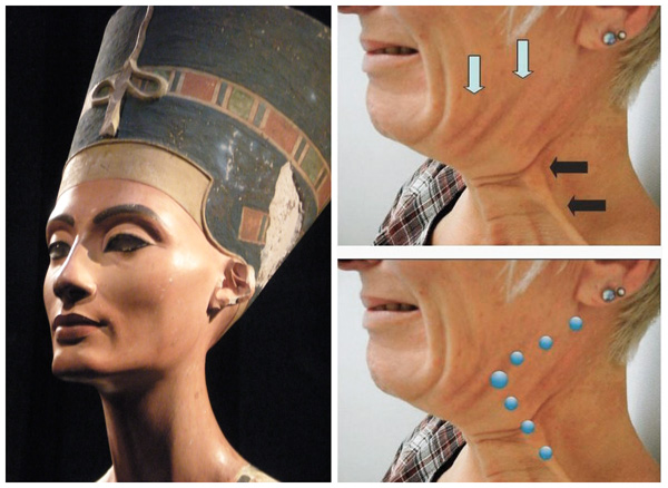 Levage Nefertiti, sites d'injection
