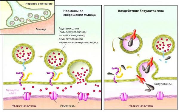 Comment la toxine botulique affecte les cellules musculaires