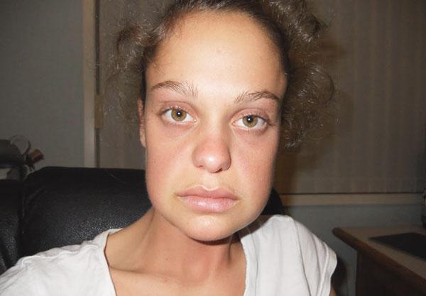 Gonflement du visage après l'introduction de charges