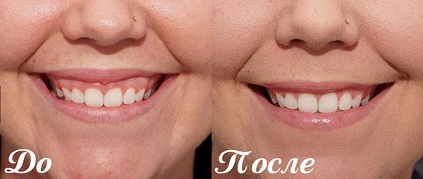 Botox Correction du sourire gingival